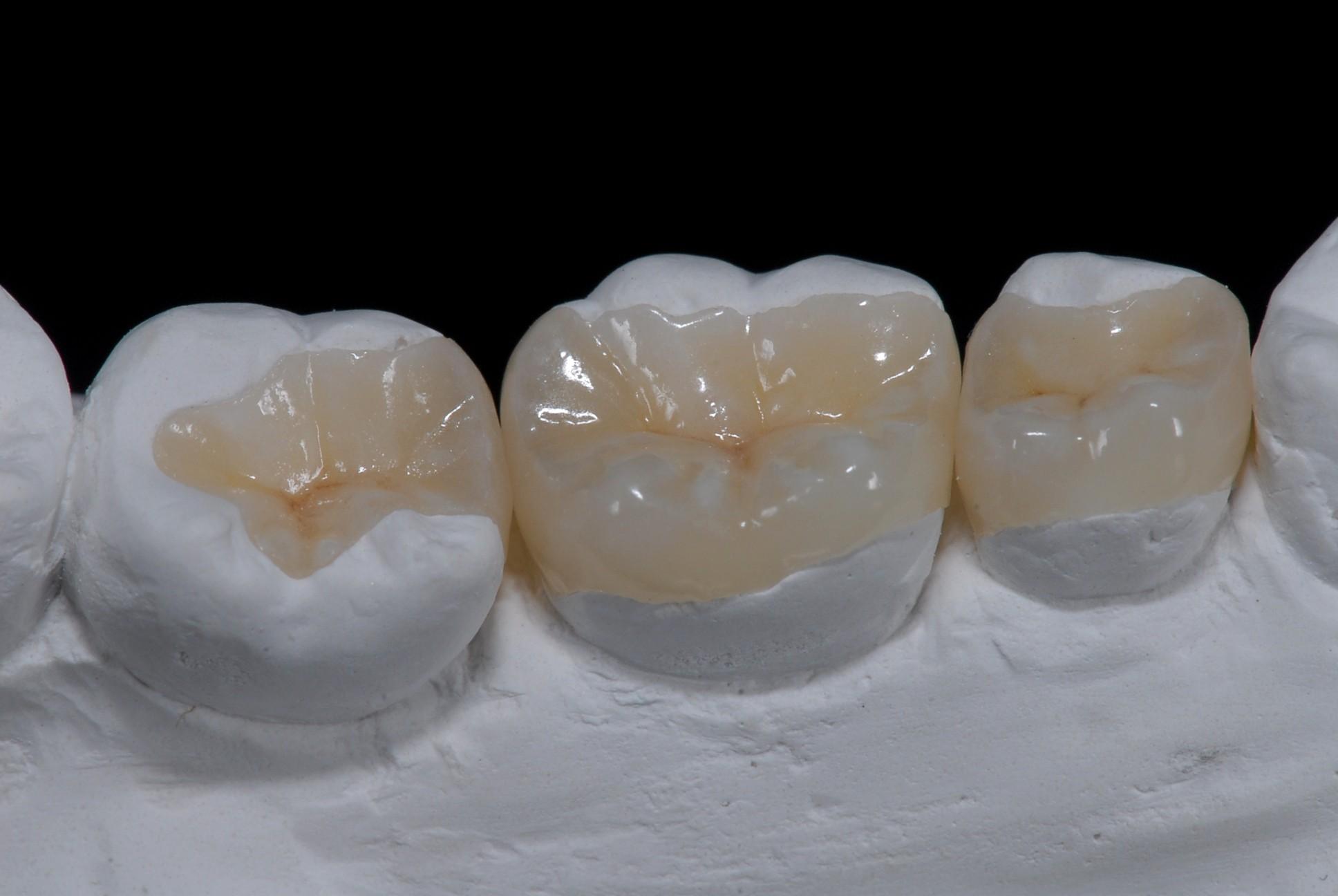Prothèse dentaire : un choix légitime pour les patients ?